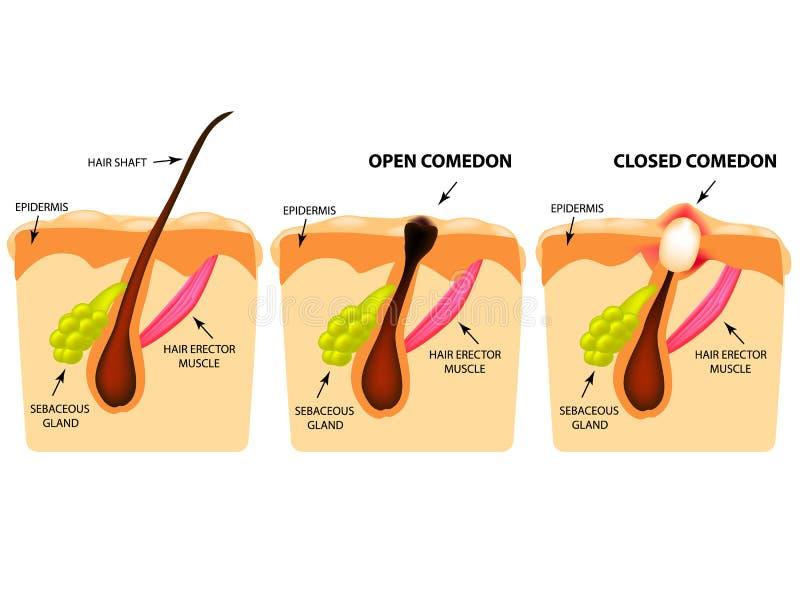 Arten der Akne Öffnen Sie Comedones, geschlossene Comedones, Hautstruktur Infographics Vektorillustration auf lokalisiertem Hinte stock abbildung