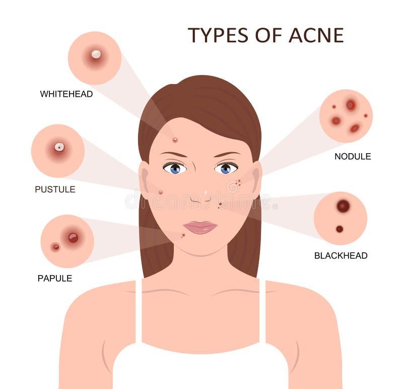 Arten der Akne Frau mit Pickeln lizenzfreie abbildung