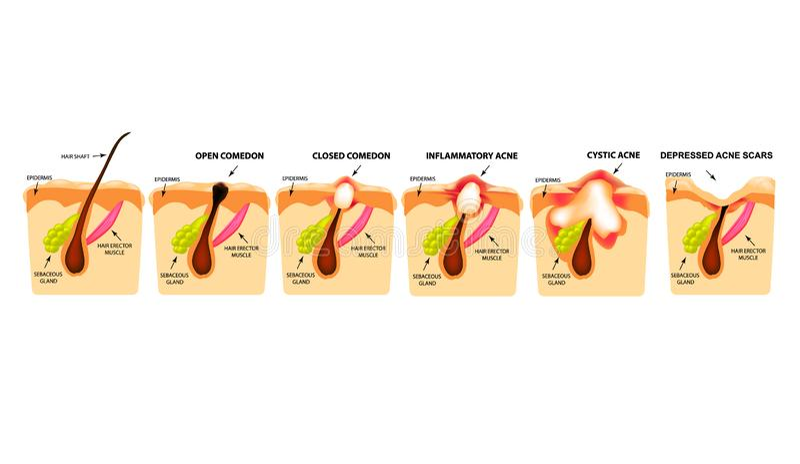 Arten der Akne Geschlossene Comedones, offene Comedones, entflammte Akne, Zysten Entflammte Pickel Die Struktur der Haut narbe stock abbildung