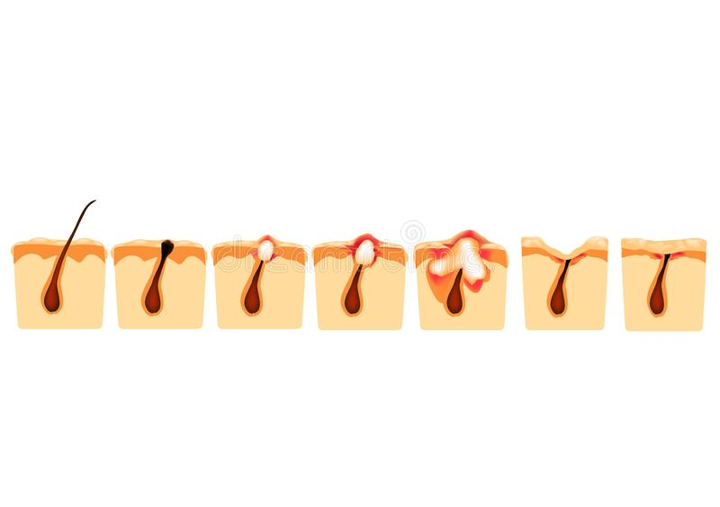 Arten der Akne Geschlossene Comedones, offene Comedones, entflammte Akne, Zysten Entflammte Pickel Die Struktur der Haut narbe lizenzfreie abbildung