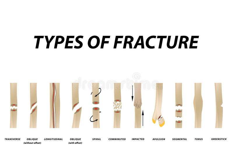 Arten des Bruchs Bruch-Knochen-Satz Infographics Vektorillustration auf lokalisiertem Hintergrund stock abbildung