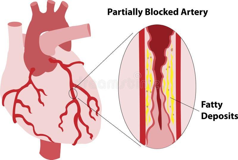 Arteria coronaria parcialmente bloqueada stock de ilustración