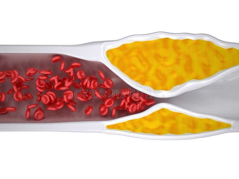 Arteria estorbada - ateroesclerosis/arteriosclerasis - placa del colesterol - visión superior ilustración del vector