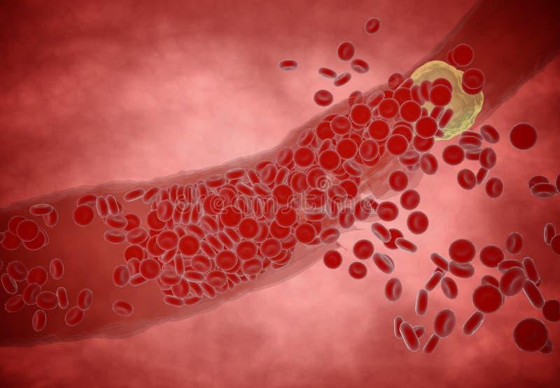 Arteria ostruita con le piastrine e la placca del colesterolo, concetto per il rischio sanitario per obesità o essere a dieta e p fotografie stock libere da diritti