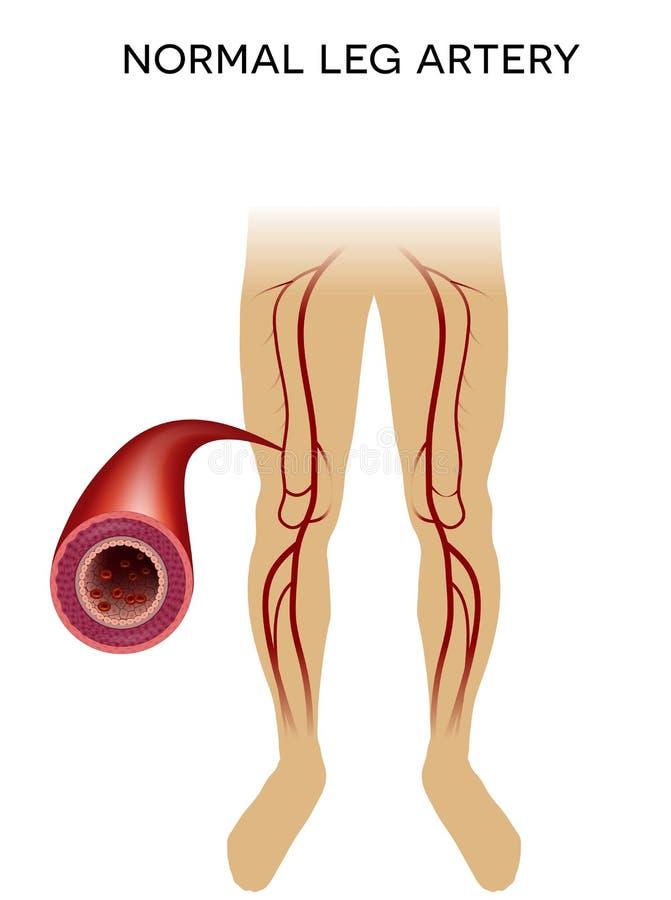 Arteria sana de la pierna ilustración del vector