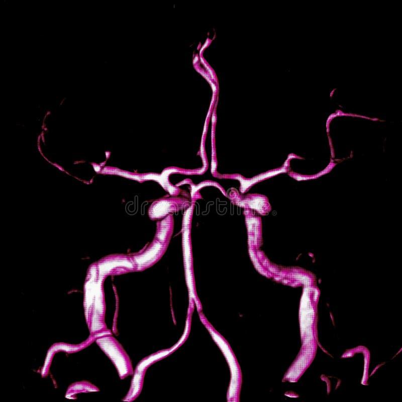 Arterias cerebrales imagenes de archivo