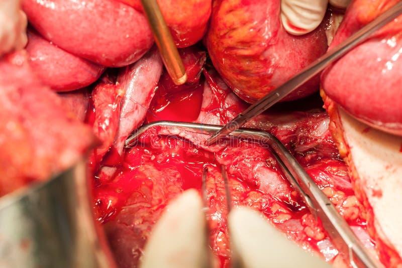 Download Arterias Y Venas Del Abdomen Con La Abrazadera Vascular Imagen de archivo - Imagen de abrazadera, intestino: 41910933
