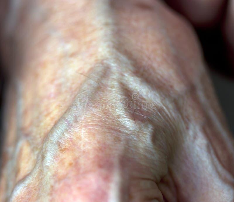 Arterie stockbild