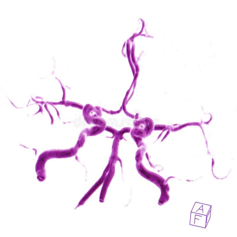 Arterie cerebrali fotografia stock libera da diritti