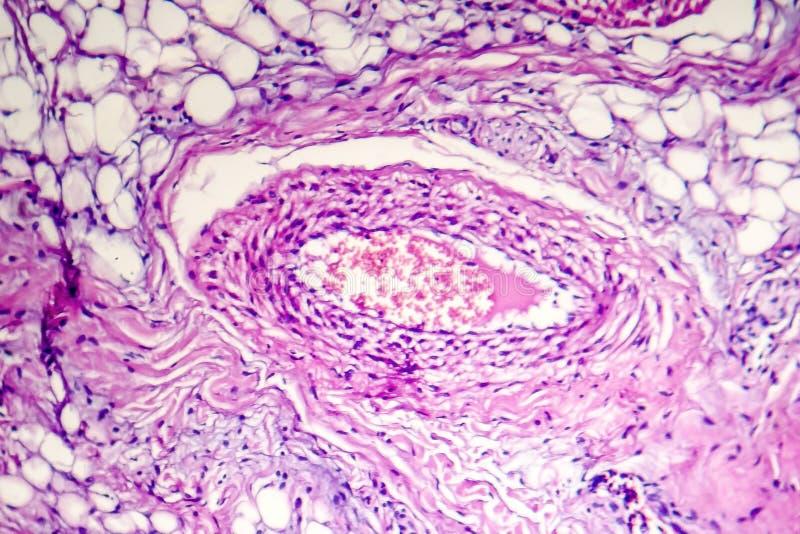Arterie innerhalb des Fettgewebes lizenzfreies stockbild