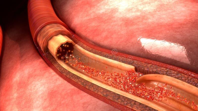 Arterien-Zerlegung lizenzfreie stockfotos