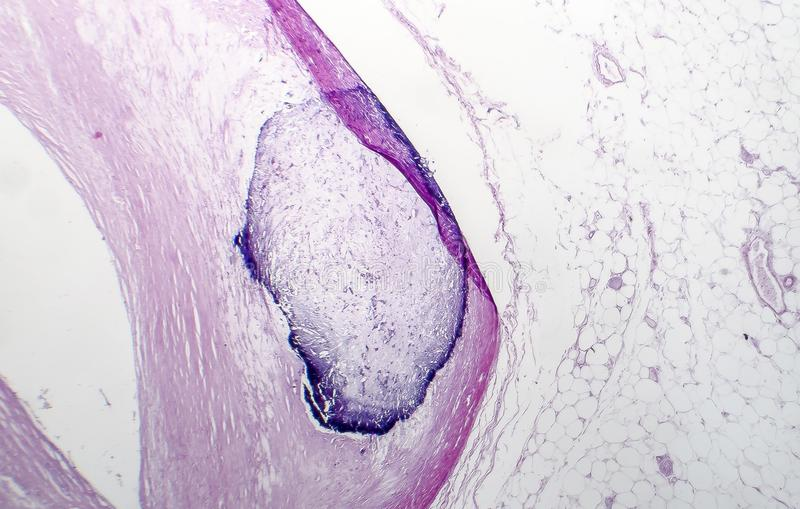 Arterii wapnienia histopatologia zdjęcie royalty free