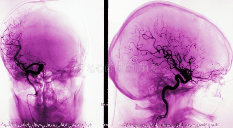 Arteriografia de embarcações do cérebro foto de stock royalty free