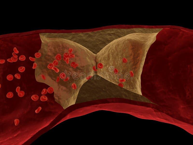 Arteriosclerose ilustração royalty free