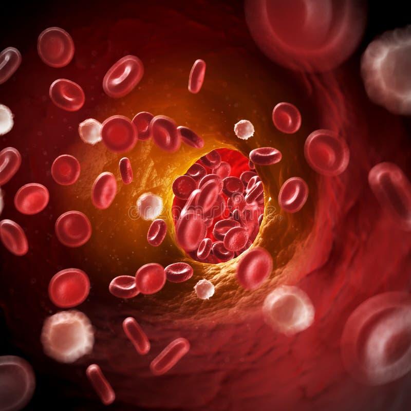 Arteriosklerosis illustration de vecteur