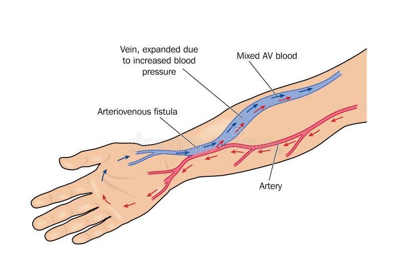 Arteriovenöse Fistel lizenzfreie abbildung