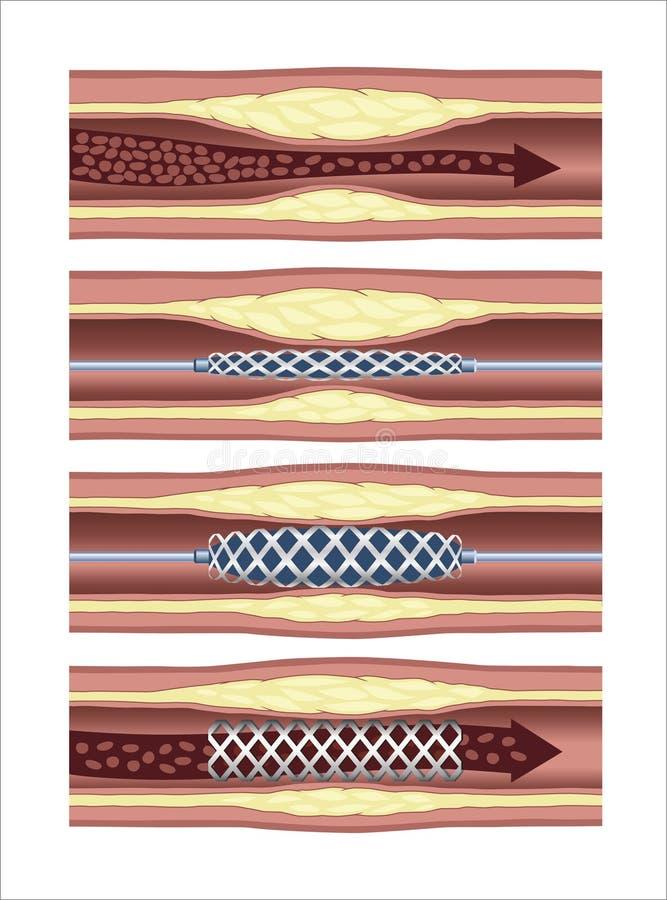 Artery Stent royalty free illustration
