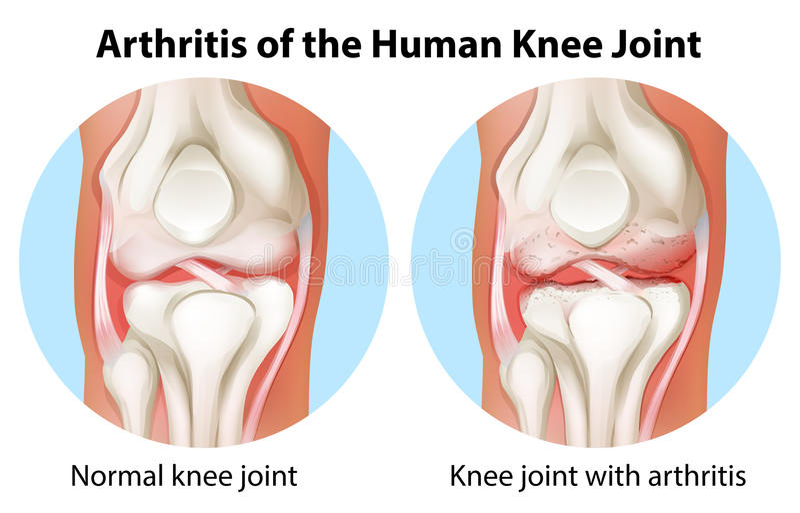 Arthrite de l'articulation du genou humaine illustration stock