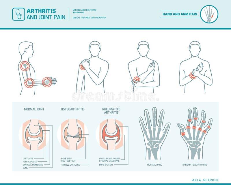 Arthrite et douleurs articulaires illustration stock