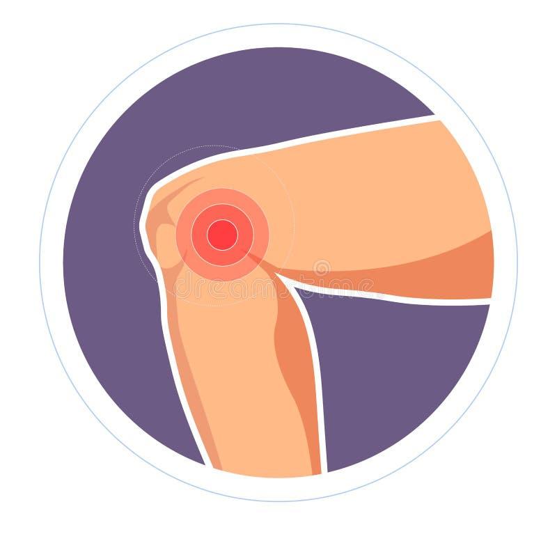 Arthrite ou rheumatologie de mal de joint de douleur de genou de blessure illustration libre de droits