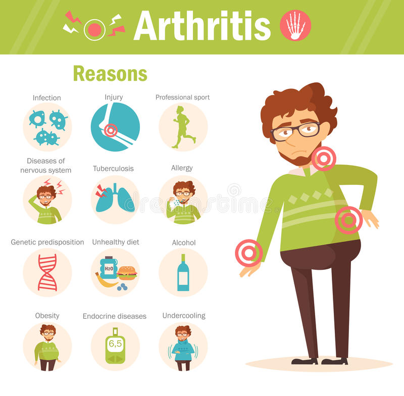 arthrite raisons Vecteur images libres de droits