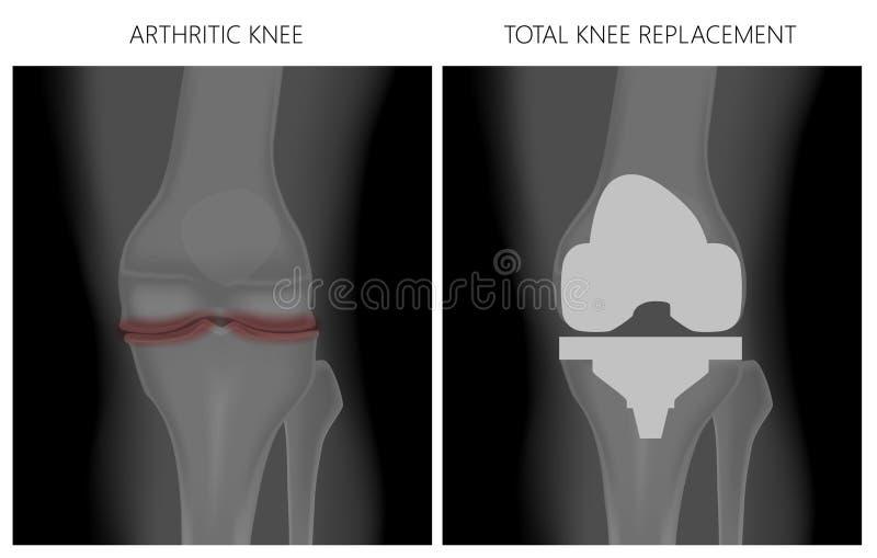 _Arthritic knä för menisk och sammanlagt knäutbyte vektor illustrationer