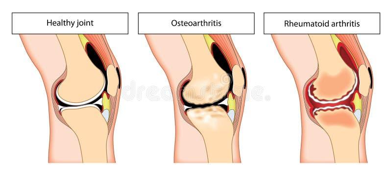 Arthritic knee joint royalty free illustration