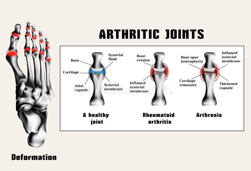 Arthritique se joint illustration de vecteur