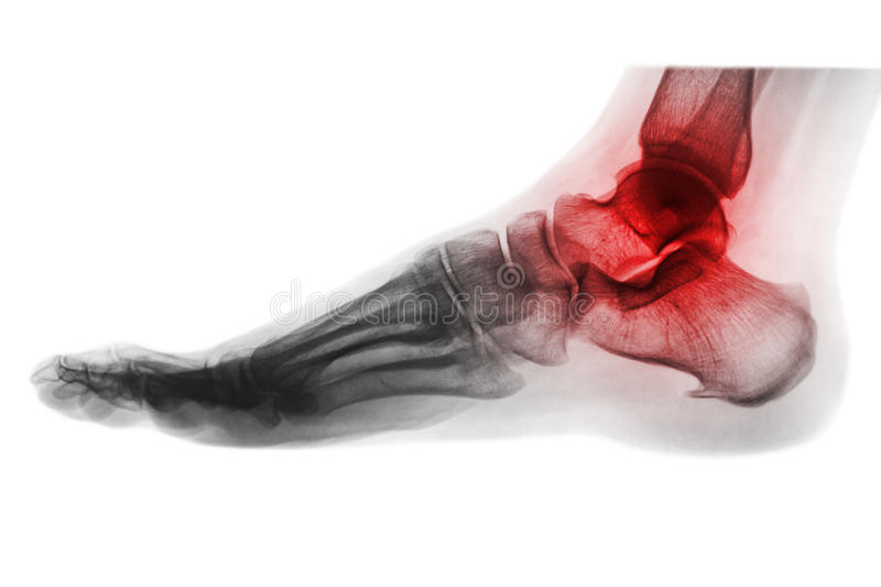 Arthritis of ankle . X-ray of foot . Lateral view . Invert color style.  stock photos