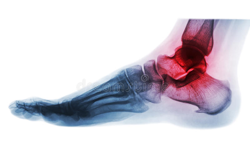 Arthritis of ankle . X-ray of foot . Lateral view . Invert color style . stock photography