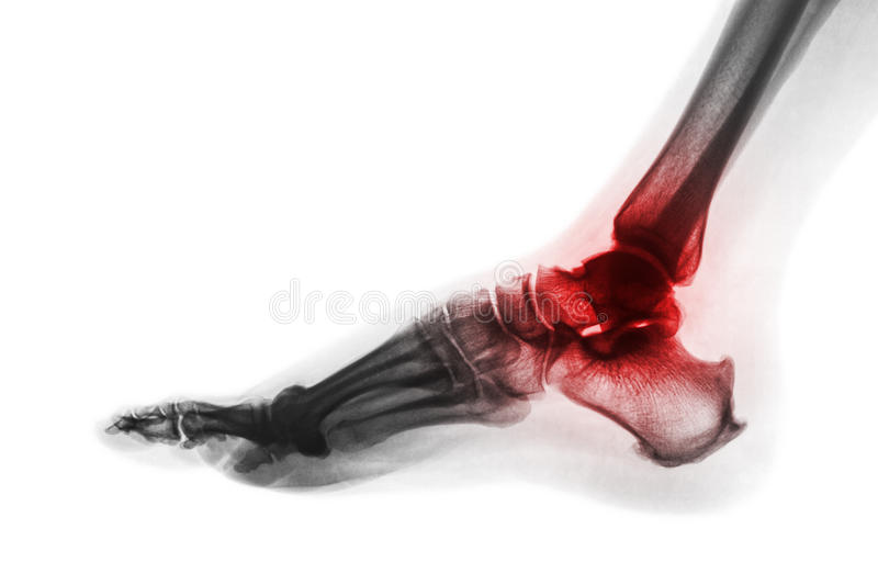 Arthritis of ankle . X-ray of foot . Lateral view . Invert color style . Gout or Rheumatoid concept.  stock photos
