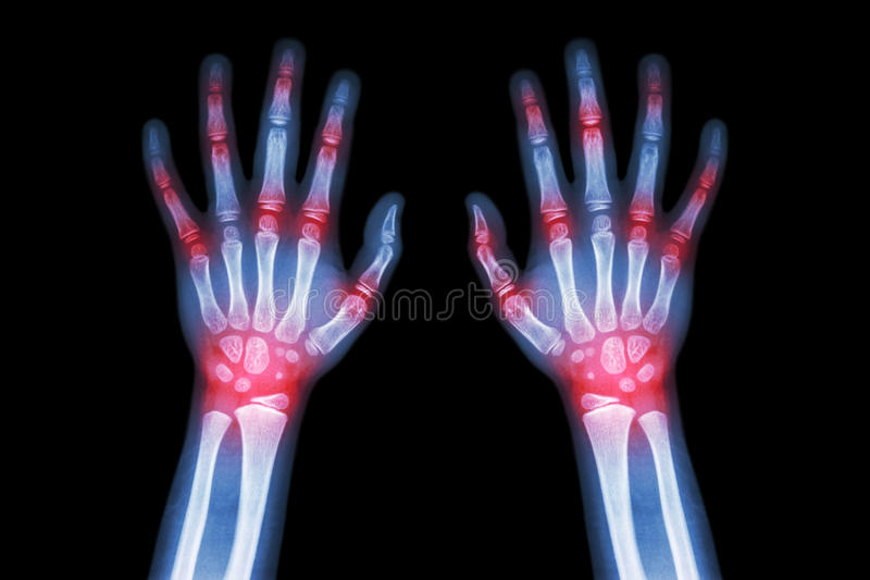 Arthritis der rheumatoiden Arthritis, der Gicht (Filmröntgenstrahl beide Hände des Kindes mit der mehrfachen gemeinsamen Arthriti stockfotografie