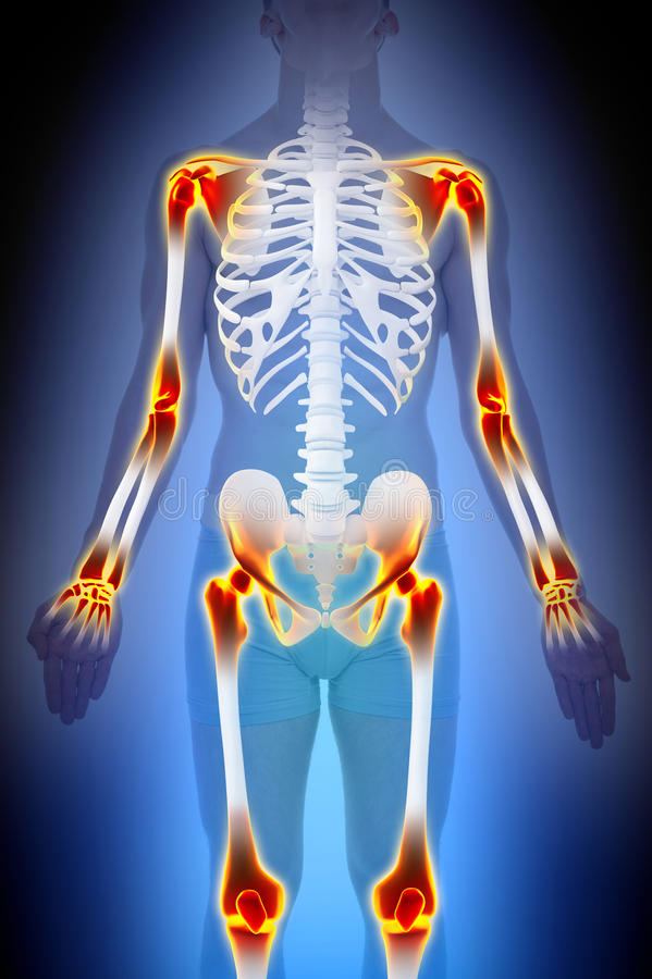 Arthritis Joints Pain Anatomy Male concept vector illustration