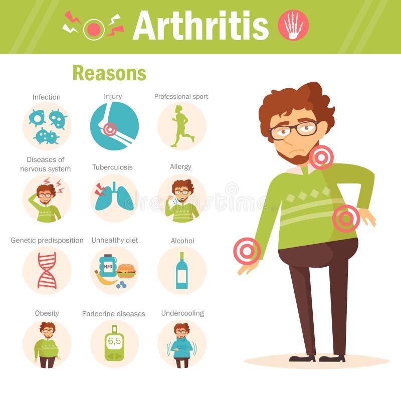 arthrogram powody wektor ilustracja wektor