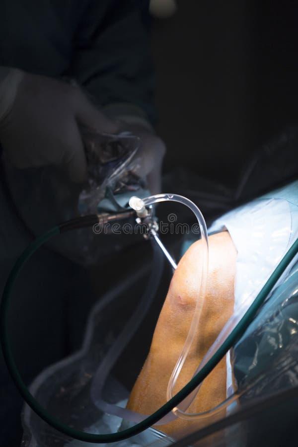 Arthroscopy σταλαγματιά γονάτων χειρουργικών επεμβάσεων Traumatology ορθοπεδική στοκ εικόνα