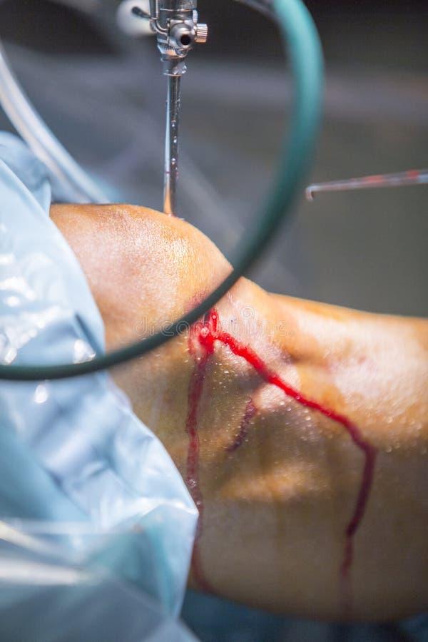 Arthroscopy orthopedic surgery knee arthroscope probe. Traumatology orthopedic surgery hospital emergency operating room prepared for knee torn meniscus stock photos