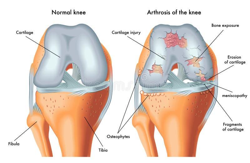 Arthrosis av knäet stock illustrationer