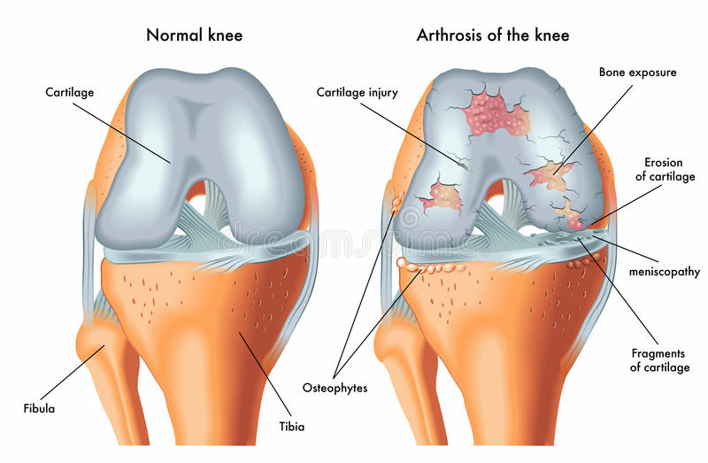 Arthrosis of the knee. Medical illustration of the symptoms of arthrosis of the knee stock illustration