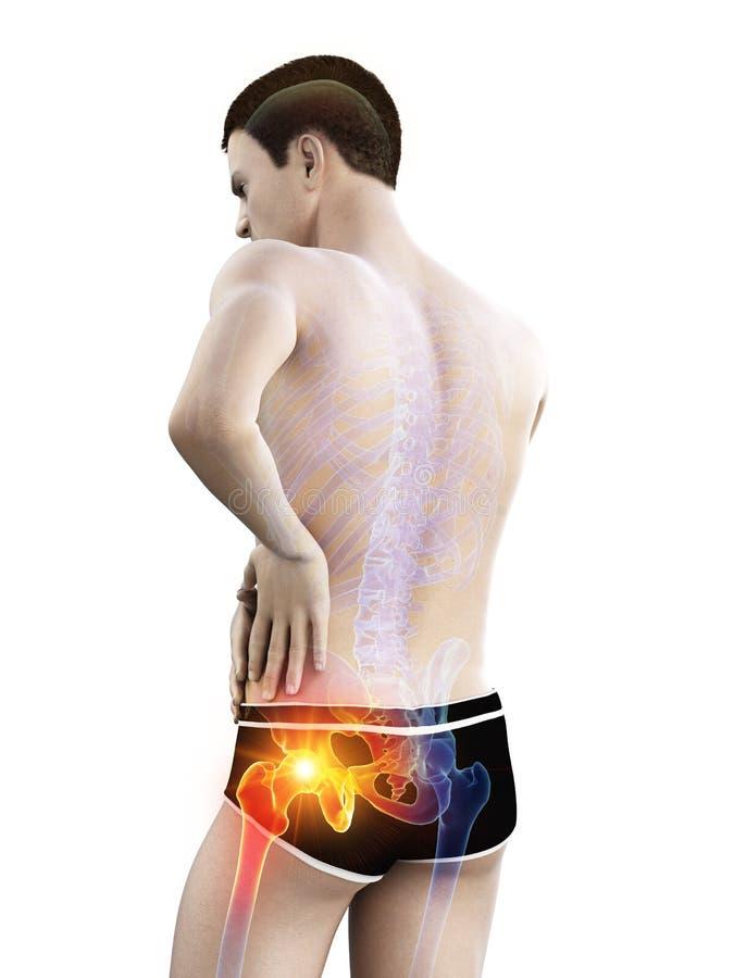 Articolazione dell'anca dolorosa illustrazione di stock