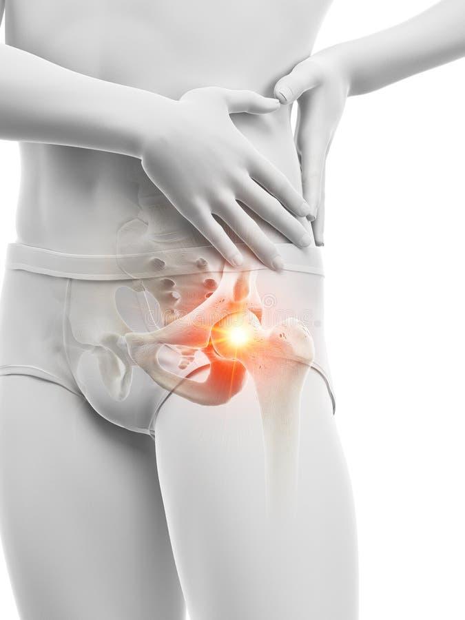 Articolazione dell'anca dolorosa illustrazione vettoriale