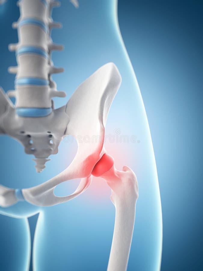 Articolazione dell'anca evidenziata illustrazione di stock