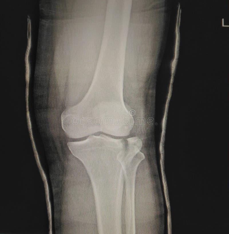 Articulação do joelho da fratura imagens de stock