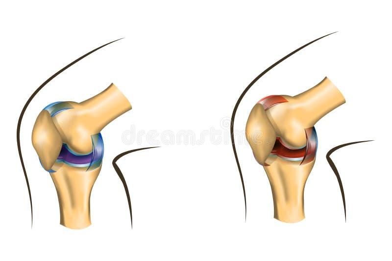 A articulação do joelho de saudável e danificada ilustração stock