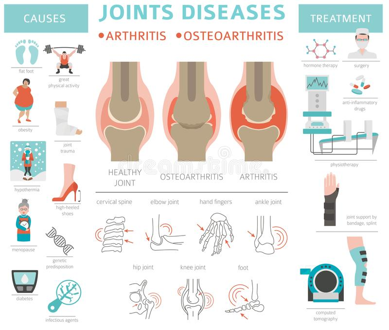 Articula enfermedades Artritis, síntomas de la osteoartritis, tratamiento i ilustración del vector