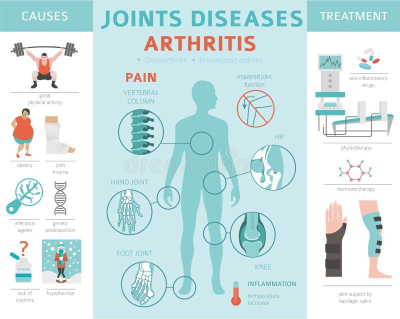 Articula enfermedades Síntomas de la artritis, sistema del icono del tratamiento Médico stock de ilustración