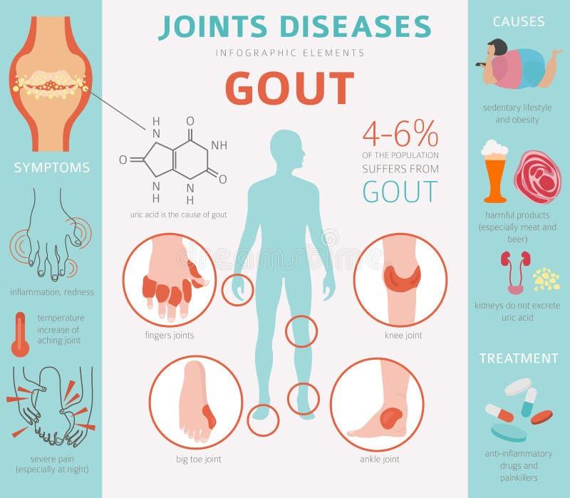 Articula enfermedades Síntomas de la gota, sistema del icono del tratamiento Info médico ilustración del vector
