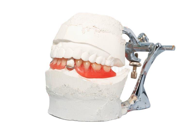 Articulateur dentaire de laboratoire avec la prothèse dentaire image stock