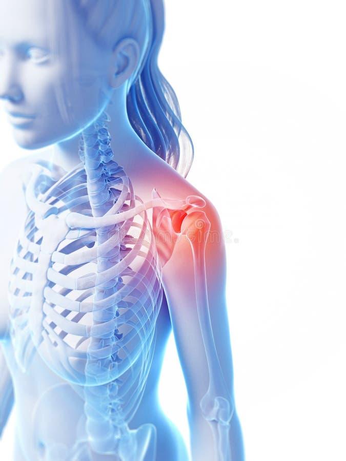 Articulation de l'épaule accentuée illustration de vecteur