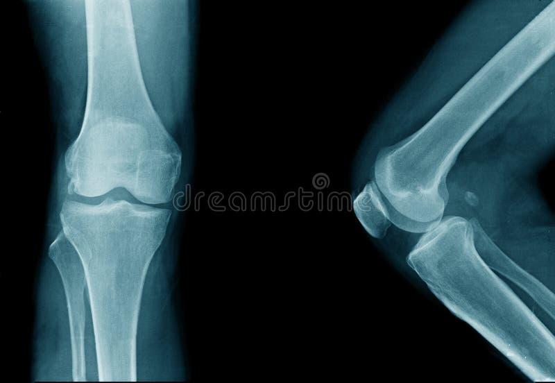 articulation du genou de haute qualité de rayon X de vieil homme images libres de droits
