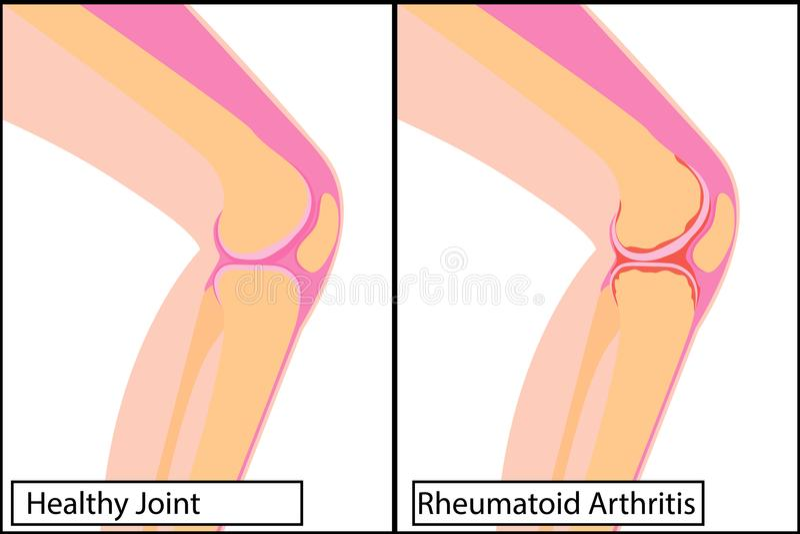 Articulation du genou saine et illustration médicale de vecteur de rhumatisme articulaire illustration libre de droits